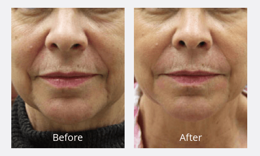 Choosing a Filler Guilford | Injectables Connecticut | The