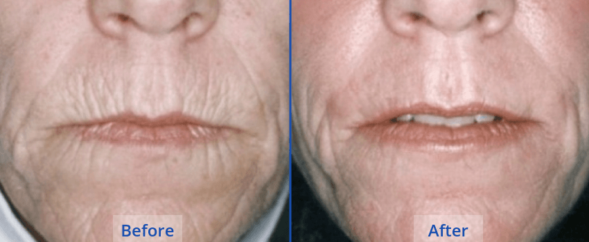 Laser-Resurfacing-Guilford