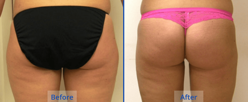 Liposuction in Guilford