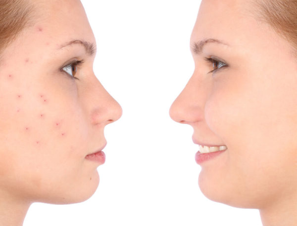 Acne Treatment Guilford
