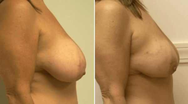 Breast-Reduction-Guilford