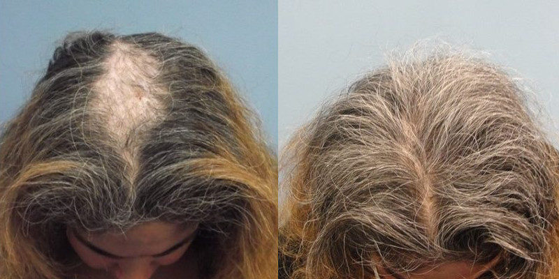 Guilford Hair-Restoration PRP