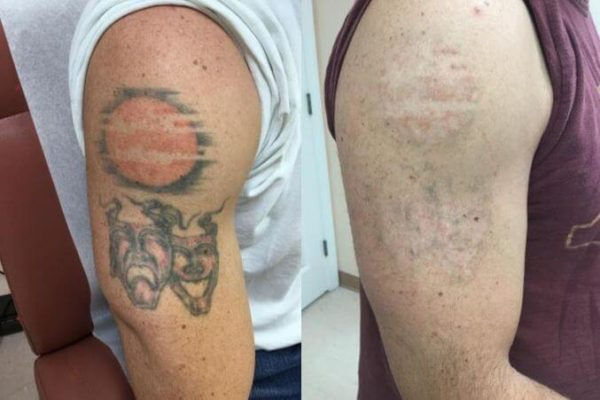 PiQo4 Laser Tattoo Removal Guilford