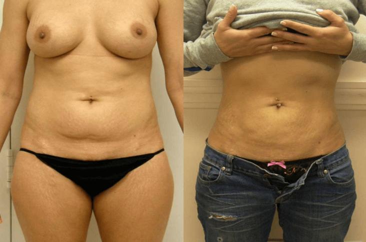 Liposuction Guilford