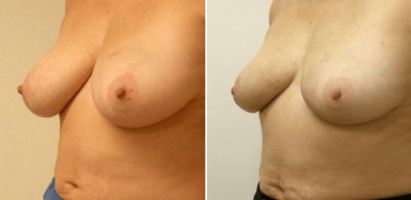 No-Scar Breast Reduction Connecticut Guilford