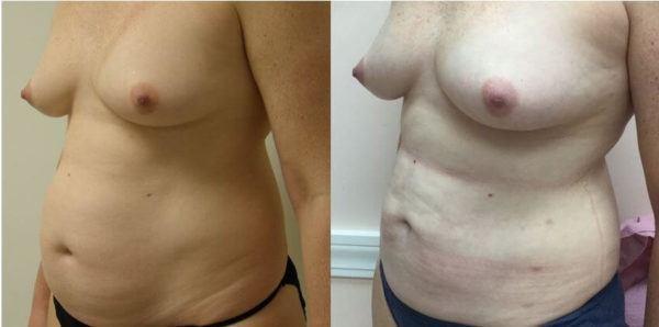 Natural Breast Augmentation Guilford